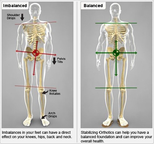 riallineamento-vertebrale-montebelluna